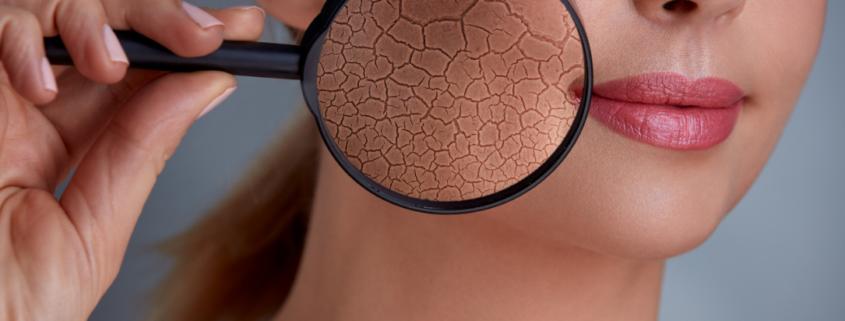 qualità della pelle